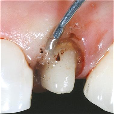 Metal Dento-Infusor Tip_hemostatic
